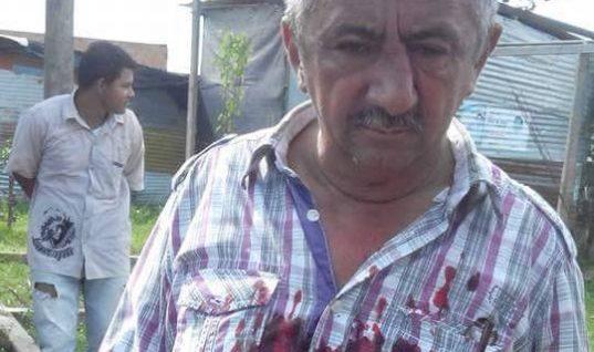 Candidato a Edil le rompió la nariz a aspirante al Concejo de Arauca