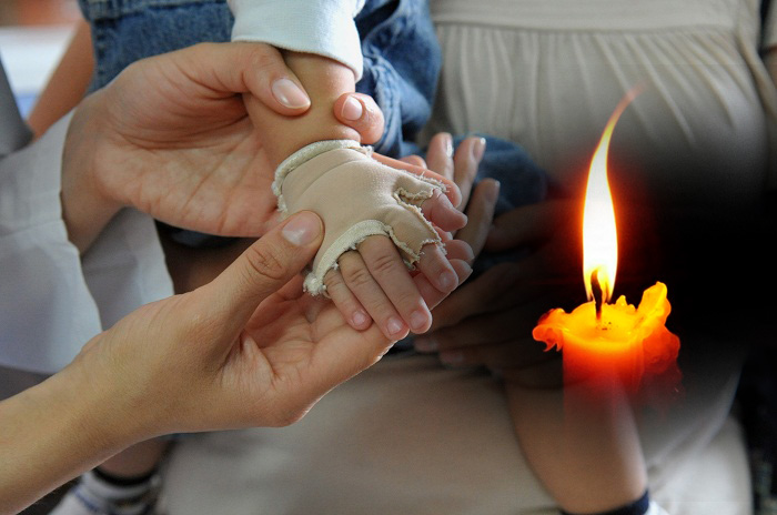 Murió bebe de once meses por quemaduras en el 90 por ciento de su cuerpo. Una vela cayó en la cama que dormía