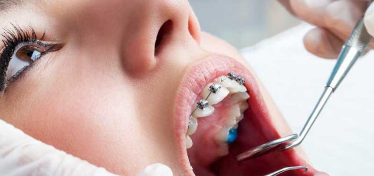 Sin ningún tipo de control se están ofertando servicios de ortodoncia venezolanos