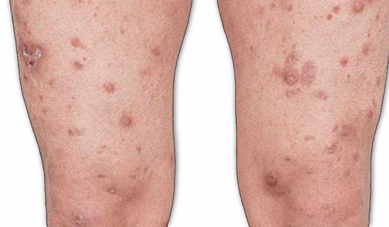 Cuatro personas han sido diagnosticadas con lepra en lo corrido del año.  En 2018 se registraron 12 casos.