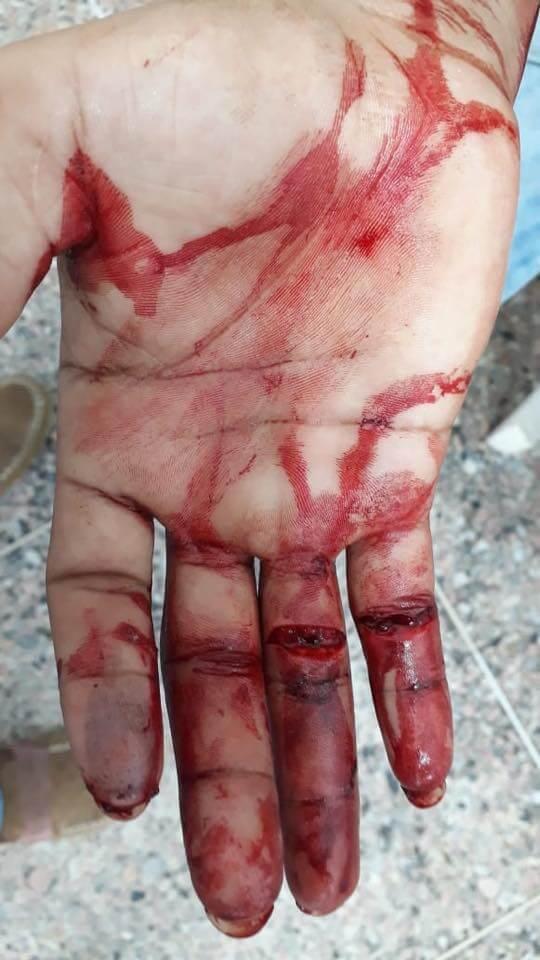 Con arma blanca intentaron atracar a ciclista vía al aeropuerto. Se defendió del ataque, pero le hirieron tres dedos de una mano.