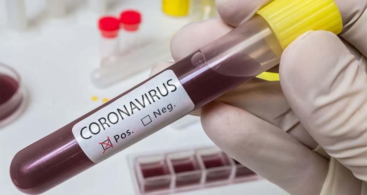 Se registraron 18 nuevos casos positivos  de covid-19 en el departamento de Arauca