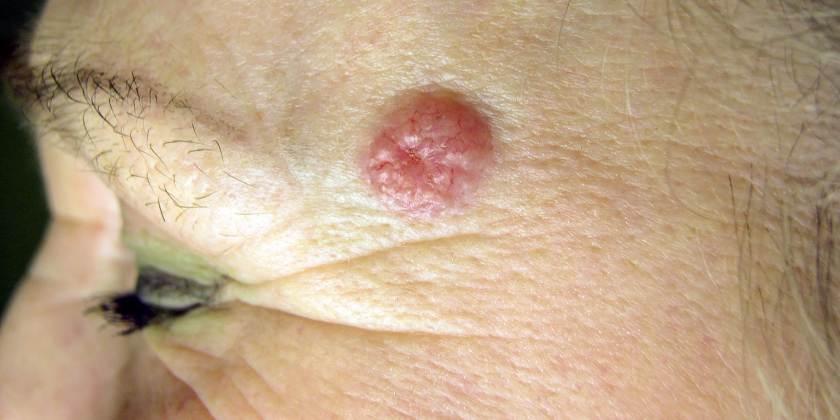 Hoy inicia jornada de salud para la detección de cáncer de piel
